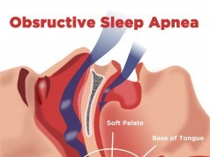 obstructive sleep apnea didgeridoo natural sleep apnea therapy
